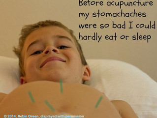 Acupuncture is NOT Dangerous for Kids