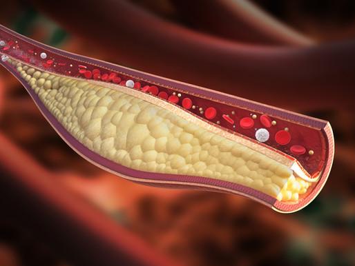 A koleszterinteória bukása