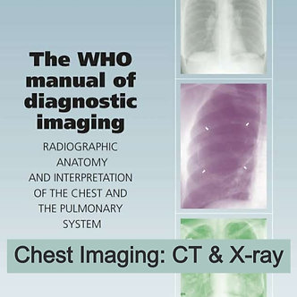 15CE: Chest Imaging CT & Xray - WHO Manual of Diagnostic Imaging - Try&Buy