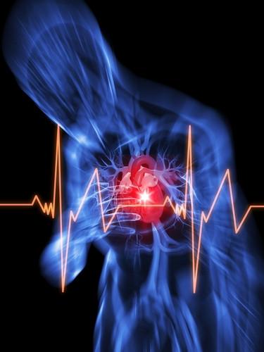 Angina, hipertensão arterial