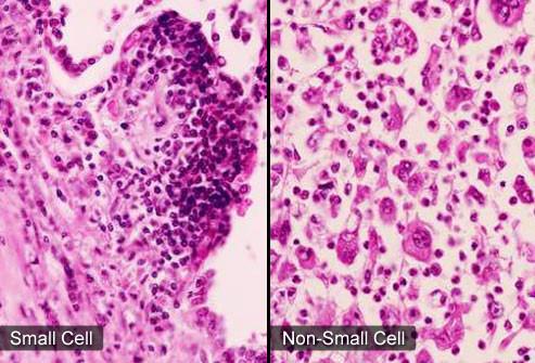 principais tipos de câncer de pulmão