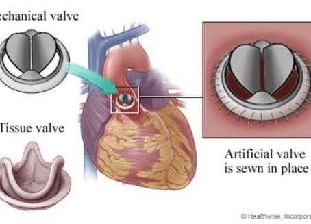 Manejo Anticoagulante em Pacientes com Fibrilação Atrial e Válvulas Protéticas na Era dos Anticoagul