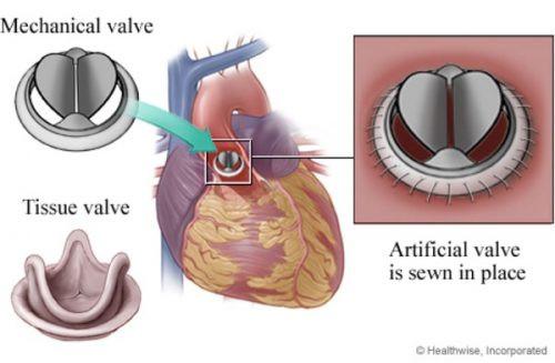 Prótese Valvar - Coração