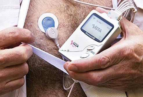 Holter monitor cardíaco