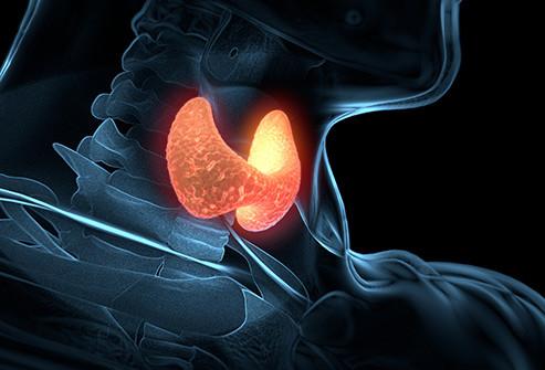 Glândula tireóide hipertireoidismo
