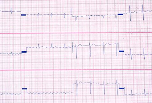 Batimento cardíaco estranho pulsação estranha