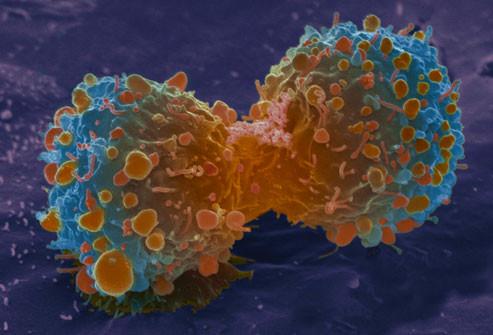 Novos tratamento de câncer