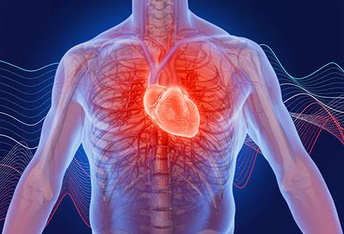 Palpitação cardíaca