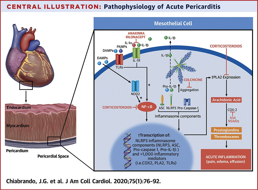 Fisiopatologia da Pericardite Aguda
