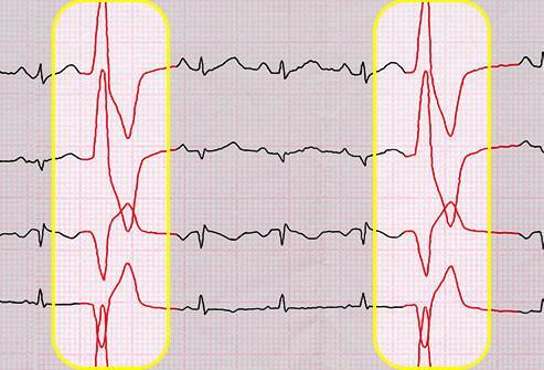 Contrações ventriculares prematuras CVP