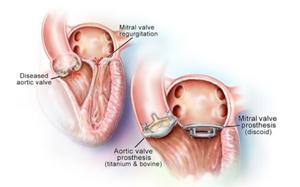 Prótese de Aorta e prótese Mitral