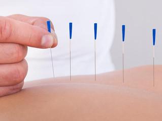 Você sabe o que é o Dry Needling?