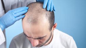 Transplante capilar: segunda cirurgia mais procurada pelos homens