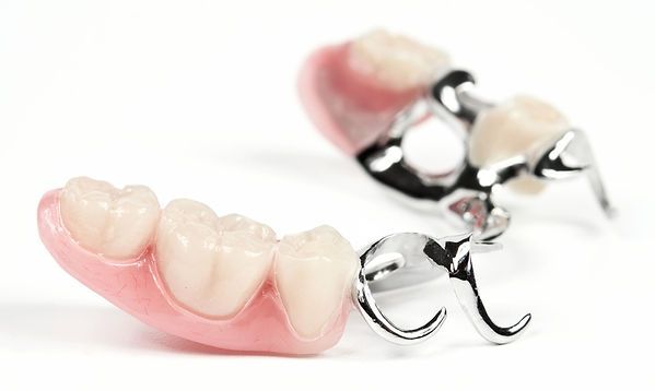 Съемное протезирование в стоматологии Са