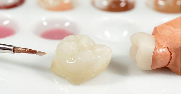 керамическая вкладка стоматологии Сакура