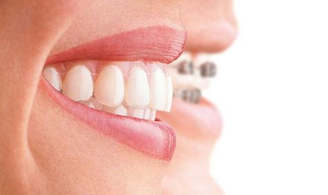 Исправление прикуса в стоматологии Сакур