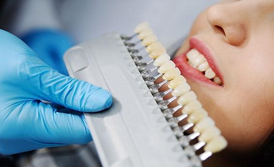 Коронки стоматологии Сакура.jpg 3