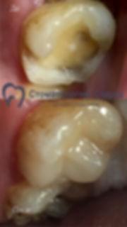 Реставрация  - Стоматология Сакура в Фря