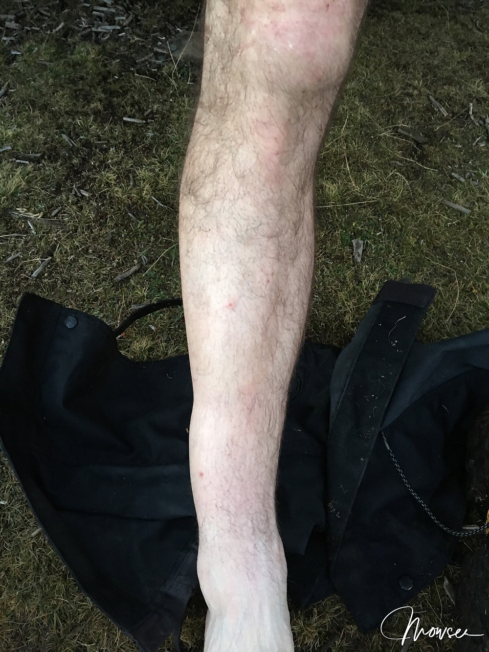 Broken ankle after a walk on Tassie's central plateau