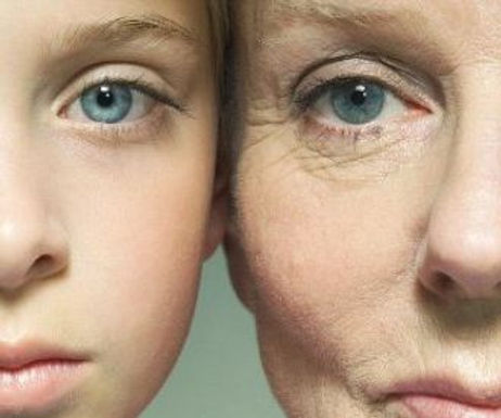 We stop age related wrinkles