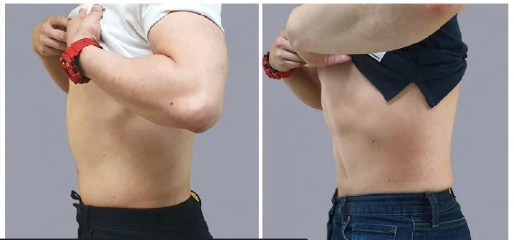 Before and After - Abs Male 3.JPG