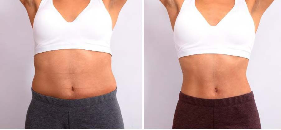 Before and After - Abs.jpg