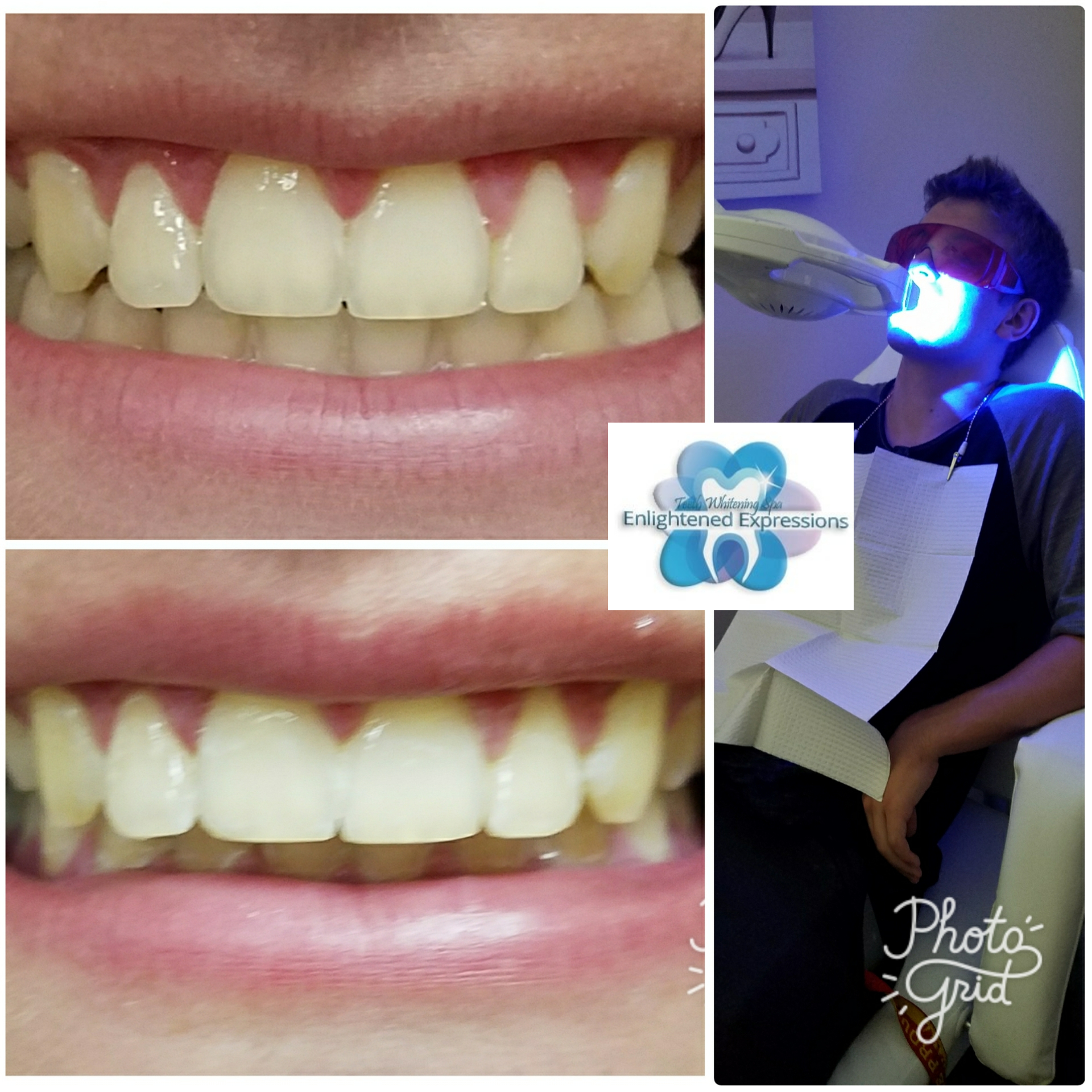 Teeth Whitening Process & Results