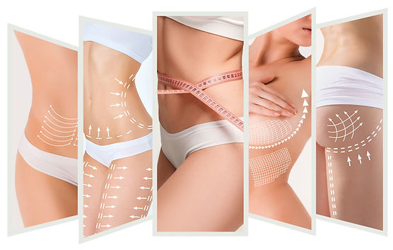 The cellulite removal plan. White markin