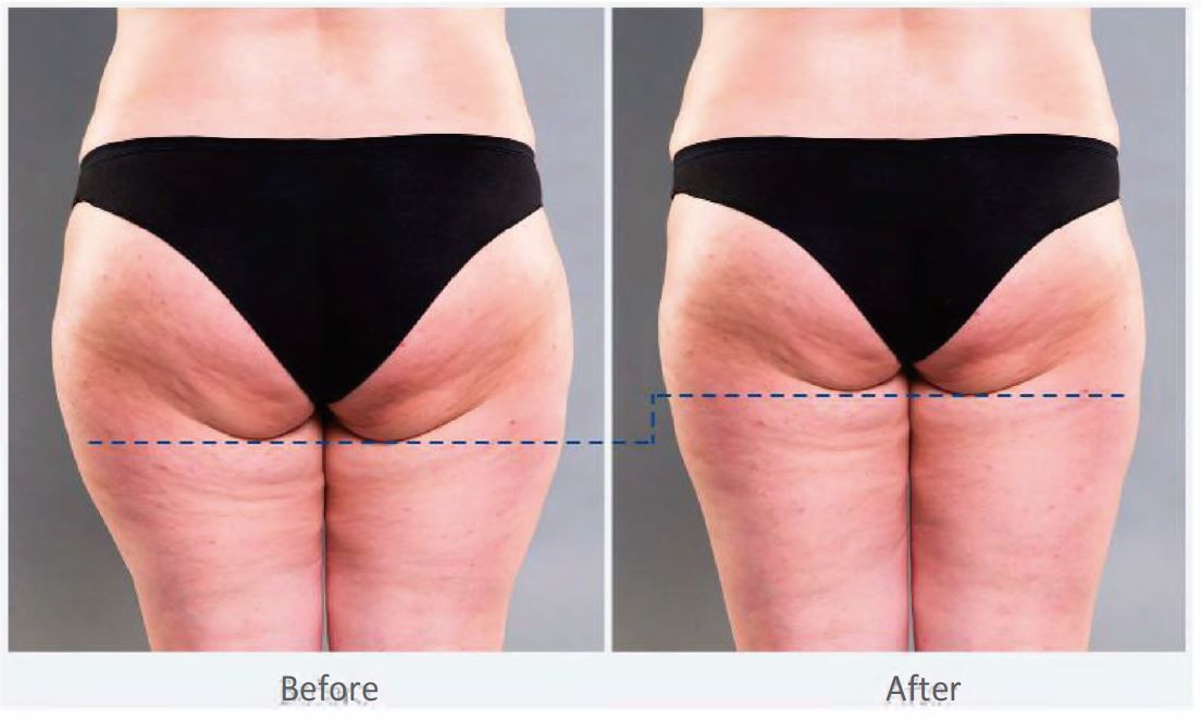 Before and After - Glutes.JPG
