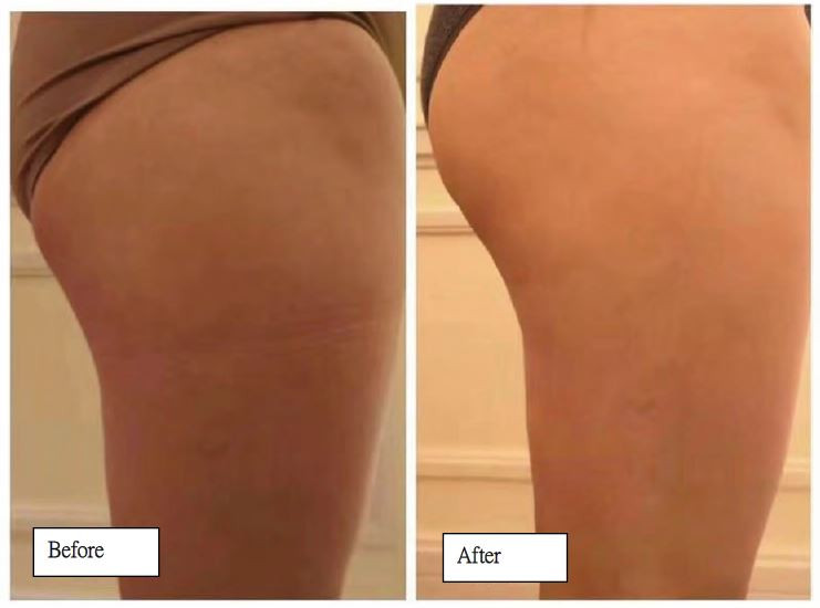 Before and After - Glutes 3.JPG