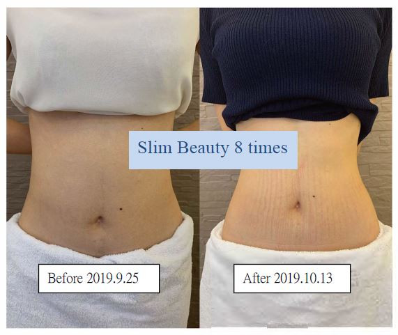 Before and After - Abs Female 2.JPG
