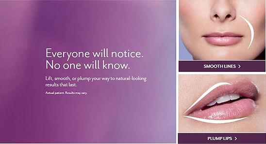 Lip Enhancement Ashbourne Aesthetics