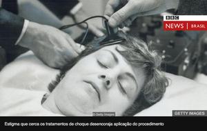 Eletrochoque - estimulação magnética - Casa da psiquiatria
