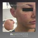 Training content from the cheek augmentation course with _mcaesthetics.jpg