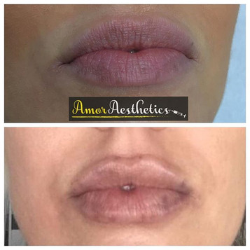 A little too-up for this lovely client 💋 Restylane has been used to shape and enhance these lips 💉 Client prone to bruising, which can be se
