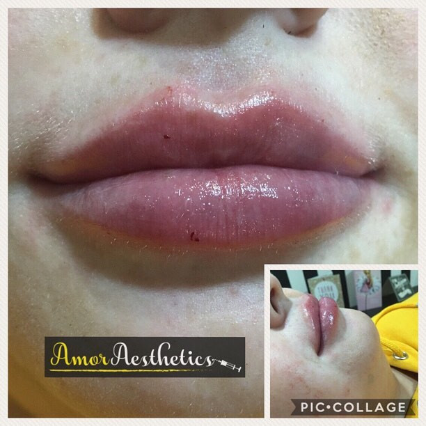 A lovely restylane 1ml enhancement 💋 #lips #lipfillers #pout #plump #cupidsbow #shape #definition #define #enhancement #enhance #aesthetics_