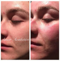 The start of clearer,  brighter skin for this client. Before the treatment and immediately after.jpg