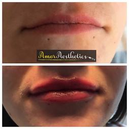Clients first time having lip fillers and what a difference a ml can make 💋 Achieved using restylane 💉 #lips #lipfillers #pout #plump #shape