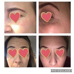 Clients own before and after results following anti ageing injections 💉 Client had her forehead and eyes treated 🙌 Before pics on left, afte