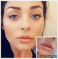 When your clients send you these beaut selfies 💋 #lips #restylane #lipfillers #lipaugmentation #aesthetics #amoraesthetics #define #enhance_