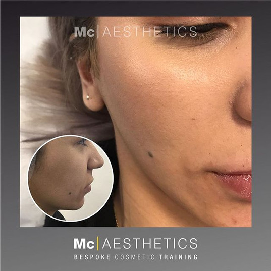 First cheek augmentation client during training 💉 The results will continue to improve over the next 3 weeks 💉 Trained with the one and only