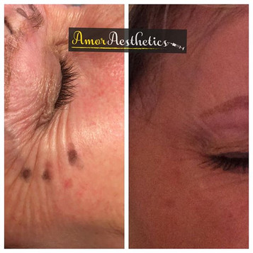 Before and after pics following anti-wrinkle injections 💉 #antiwrinkle #antiwrinkleinjections #smoothlines #smootherlines #antiaging #muscle