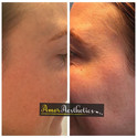 A beautiful result following anti-wrinkle injections to the eye area 🙌 #antiwrinkleinjections #botox #aesthetics #amoraesthetics #eyes #smoo
