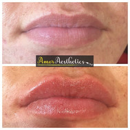 Just one of the lip transformations from the clinic _bellissimaboldmere 💋 #lips #lipfillers #clinic #shape #define #1ml #restylane #plump #p