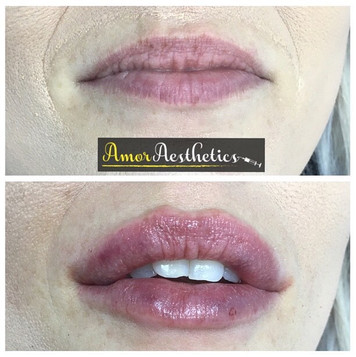First lip transformation of the day 💋 Achieved using 1ml restylane 💉 #restylane #lips #lipfillers #lipaugmentation #pout #subtle #volume #sh