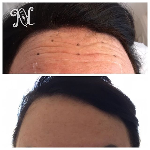 Anti wrinkle injections to forehead.jpg