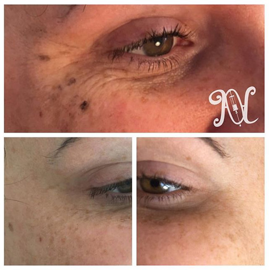 Before and after pics of anti wrinkle injections 💉 This time to the eye Area 💉 Client at two week review in bottom 2 pics 💉 #amoraesthetics_