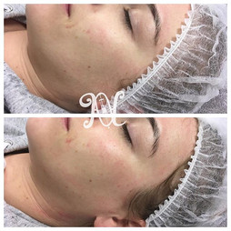 Look at that healthy glow 🙌 clients first dermaplane treatment. Advised to have another treatment at 4-6 weeks.jpg