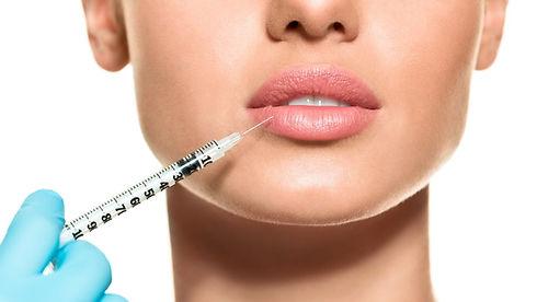 lip-lifting-injections_edited.jpg