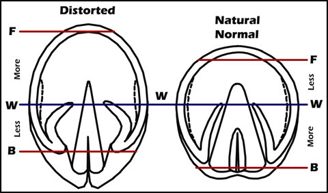 distorted hoof vs. normal hoof